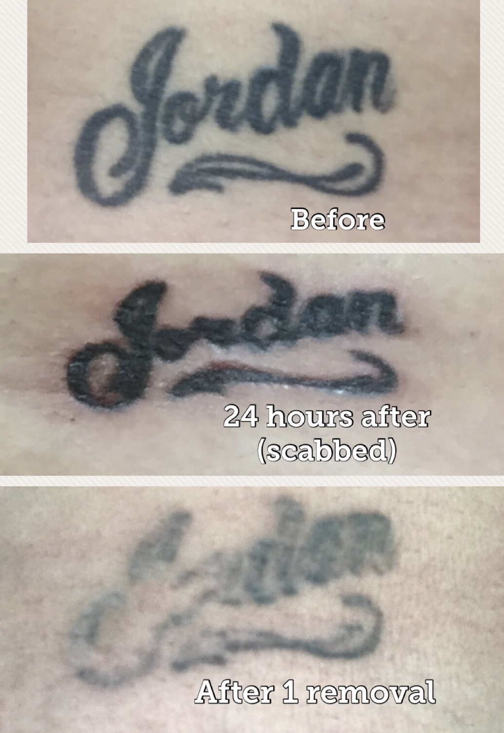 Non Laser Tattoo Removal | San Antonio, Texas - Mad Makeup ...